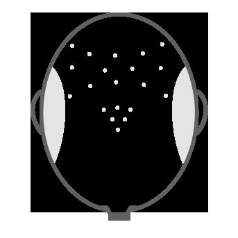 07 Escala Hamilton-Norwood cabeza