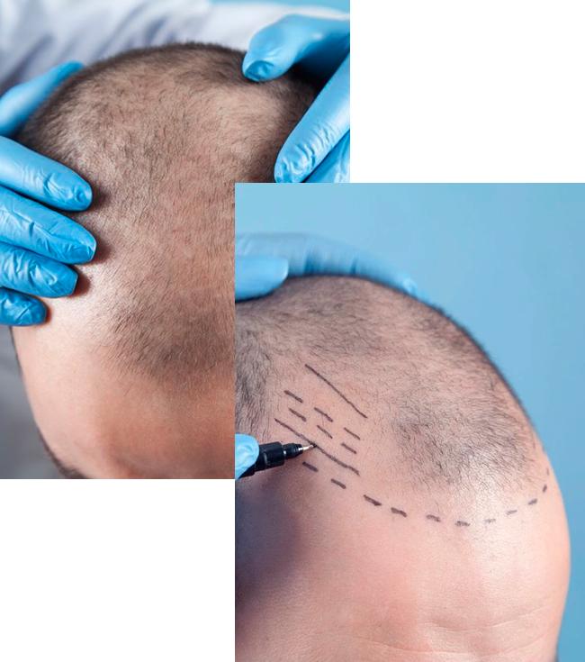 Tácnicas de Implante Capilar