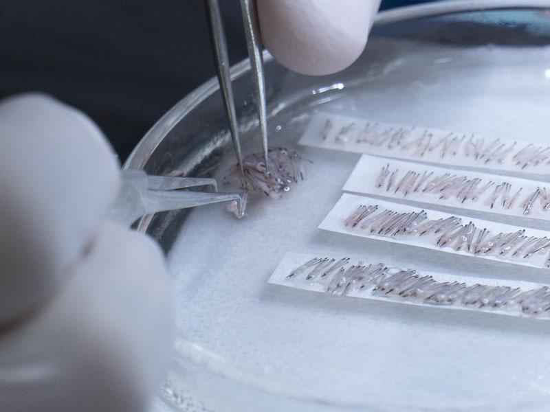 Técnica FUE Implante Capilar