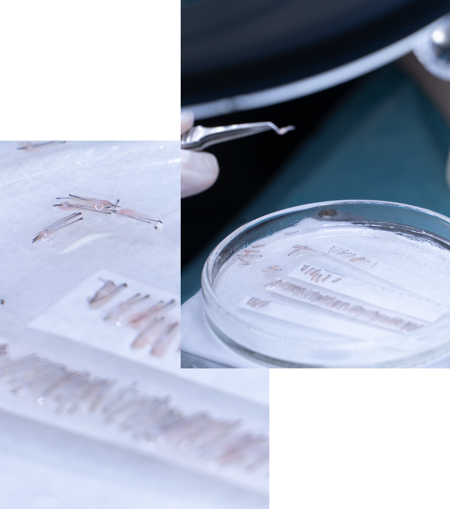 Técnica implante capilar FUE